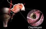 Боль в яичниках до, во время и после овуляции