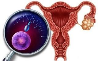 Развитие гиперфункции яичников у женщин
