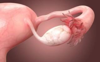 Как правильно рассчитывается объём яичников у женщины