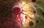 Что необходимо знать женщинам о раке яичников