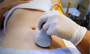 Опасность развития многокамерного образования яичника