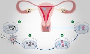 Искусственное оплодотворение при поликистозе яичников
