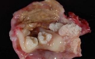 Диагностика и методы лечения тератомы яичника