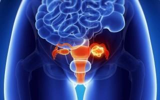 Каковы симптомы воспаления правого яичника у женщины