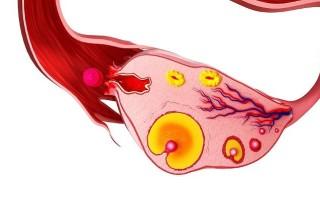 Наличие кисты желтого тела яичника у женщины и пути её лечения