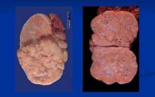 Причины появления дисгерминомы яичника и действенные способы её терапии