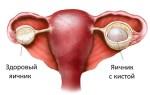 Механизм и причины образования ретенционной кисты яичника