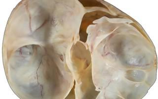 Особенности строения и виды муцинозной кисты яичника