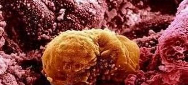 Из-за чего появляется старое желтое тело в одном из яичников