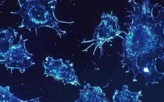 Рак яичников на третьей стадии
