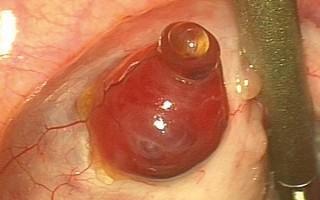 Роль фолликулов в женских яичниках