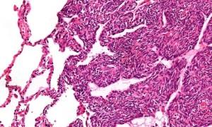 Что такое саркома яичника и как себя проявляет
