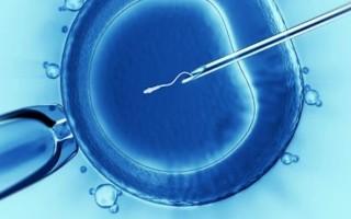 Проведение процедуры ЭКО у пациенток с кистой яичника