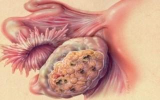 Основные факторы развития и лечение фибромы на яичнике