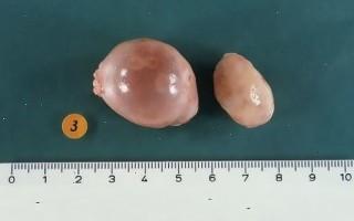 Чем грозит появление паратубарной кисты яичника