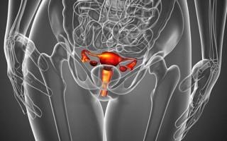 Признаки апоплексии правого яичника