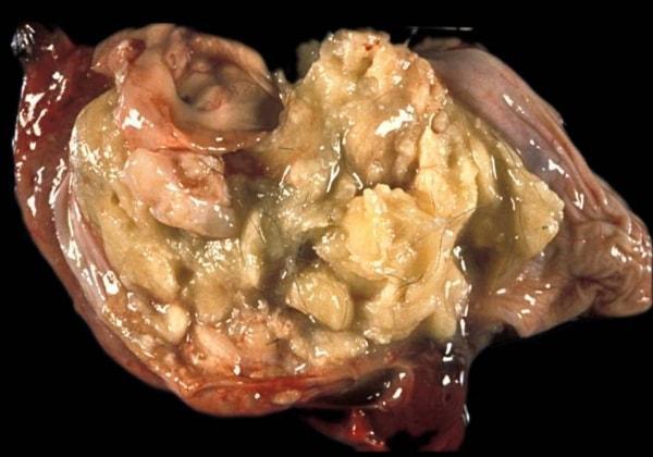 Фото дермоидной кисты после удаления