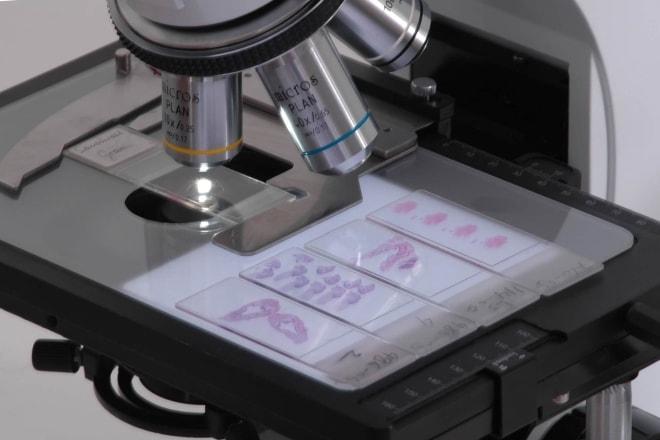 Обнаружение заболевания с помощью гистологии