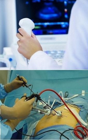 УЗИ и лапароскопия