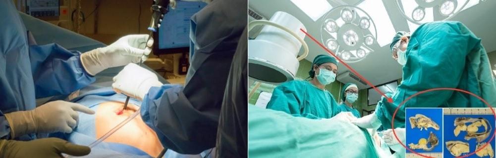 Оперирование яичника