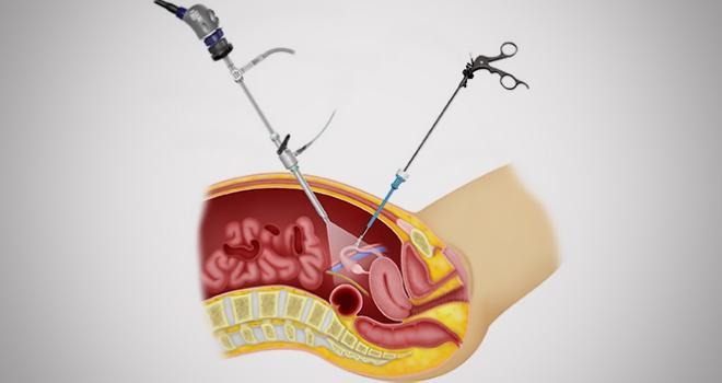 Диагностирование пациентки лапароскопическим способом