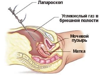 Лапароскопия с биопсией
