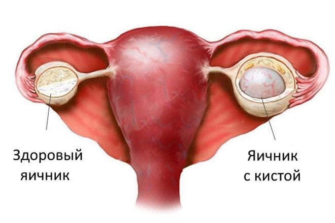 Появление кисты в яичнике