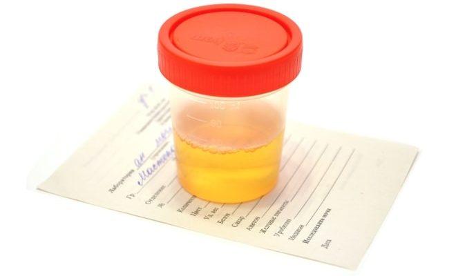 Анализ мочи перед каутеризацией яичников