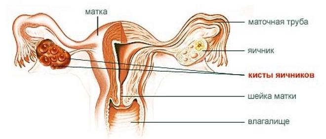 Киста яичника симптомы у женщин лечение. Как лечить кисту яичника