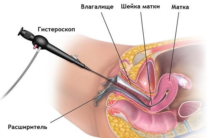 Как проводится гитероскопия