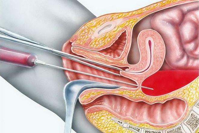Пункция кисты яичника как делается 28