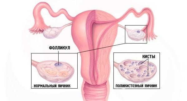 Поликистоз женских половых органов