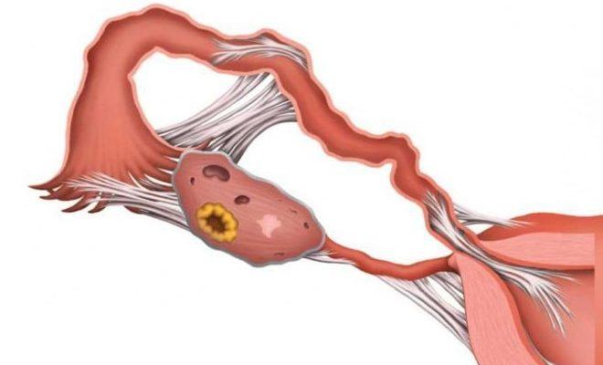 Появление спаек на яичниках