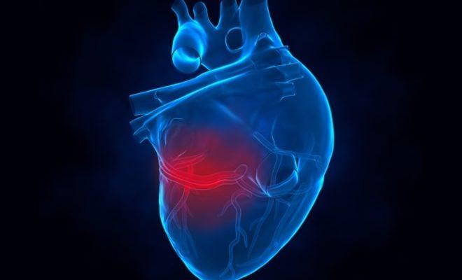 Сканирование сердца