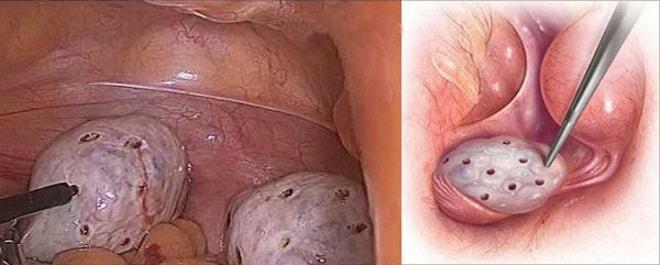 Методики проведения дриллинга яичников