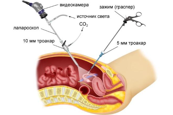 Методика проведения лапароскопии при поликистозе яичников