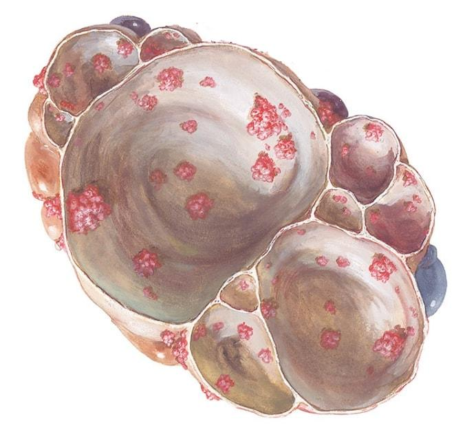 Папиллярная цистаденома