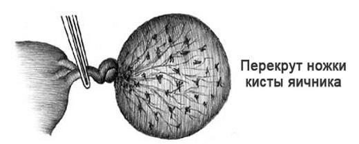 Рисунок перекрута ножки кисты яичника