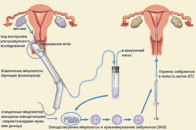 Схема проведения пункции яичников