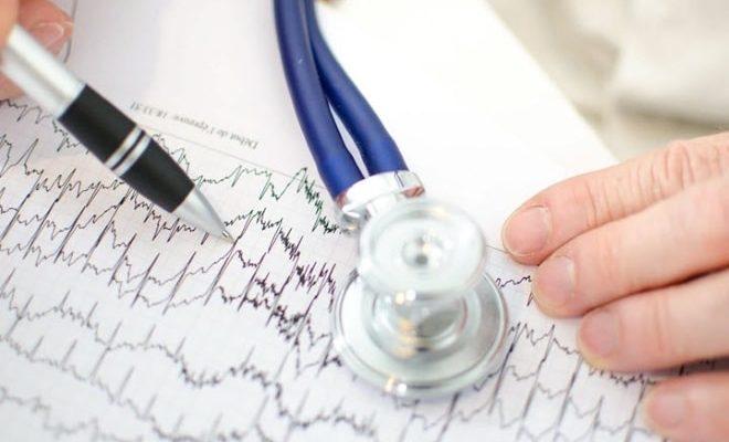 Результаты кардиограммы пациентки