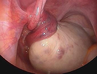 Удаление обоих яичников последствия