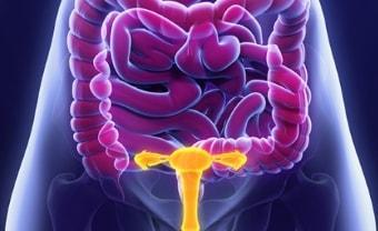 Проявление апоплексии яичника с правой или с левой стороны