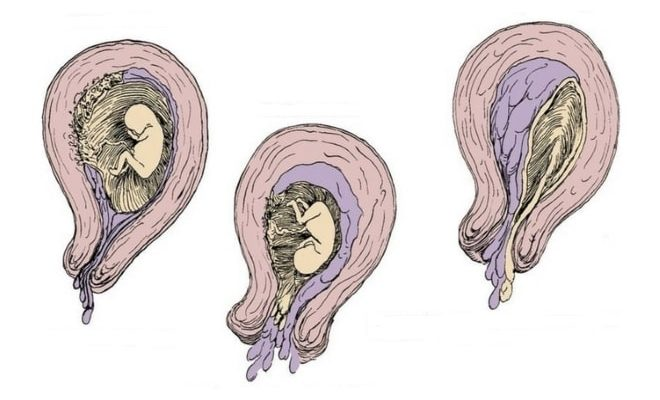 Как происходит самопроизвольное прерывание беременности у женщины