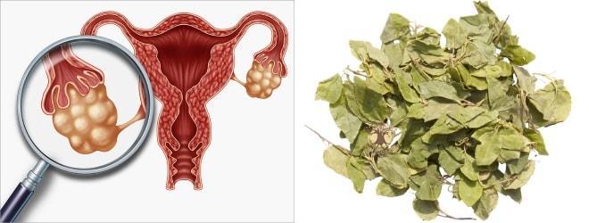Лечение поликистозных яичников боровой маткой