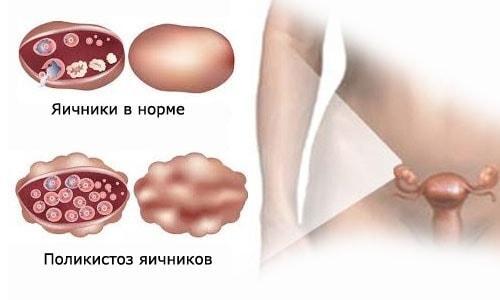 Поликистозный и здоровый яичник у женщины детородного возраста