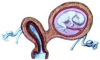 Появление у женщины внематочной беременности