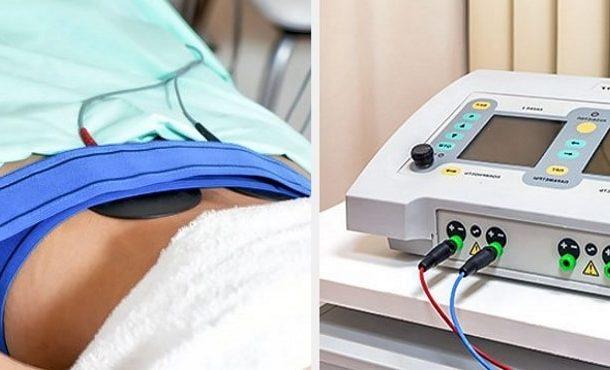 Процедура электрофореза при хроническом оофорите