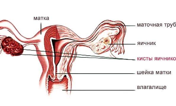 Яичник с кистой у женщины