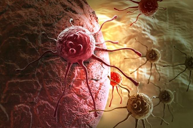 Проявление метастаз в яичниках