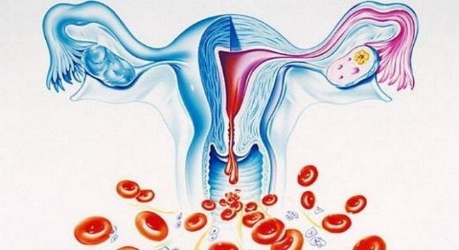 Сильные выделения из влагалища при менструальном цикле